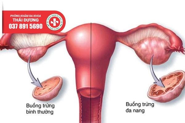 Buồng trứng đa nang là một trong những nguyên nhân gây vô sinh ở nữ giới