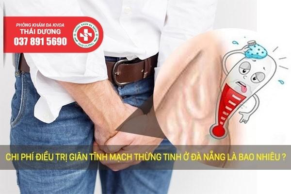 Chi phí điều trị giãn tĩnh mạch thừng tinh ở Biên Hòa 2020