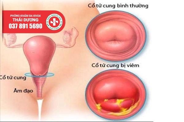 Chi phí điều trị viêm cổ tử cung ở Biên Hòa 2020