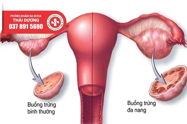 Địa chỉ chữa đa nang buồng trứng an toàn ở Biên Hòa