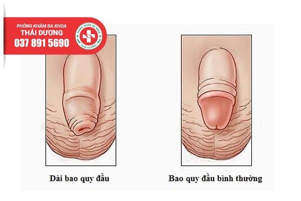 Nhận biết tình trạng dài bao quy đầu ở nam giới
