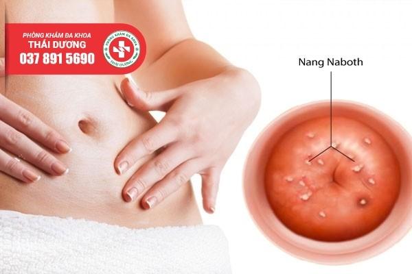 Địa chỉ điều trị nang naboth cổ tử cung ở Biên Hòa