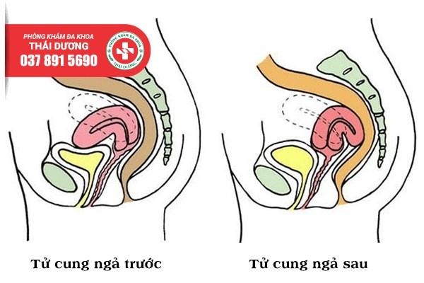 Địa chỉ điều trị tử cung ngả trước uy tín ở Biên Hòa