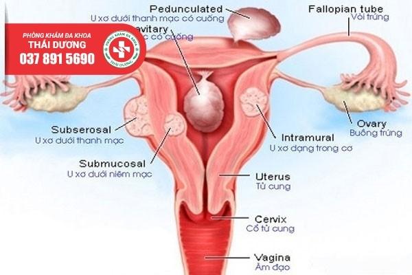 Địa chỉ điều trị u xơ tử cung ở Đồng Nai