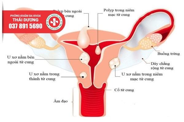 Địa chỉ điều trị u xơ tử cung ở Long Thành