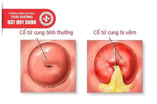 Địa chỉ điều trị viêm cổ tử cung ở Biên Hòa