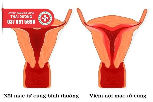 Địa chỉ điều trị viêm nội mạc tử cung ở Đồng Nai