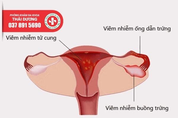 Viêm vùng chậu ảnh hưởng đến khả năng sinh sản của nữ giới nếu không điều trị sớm