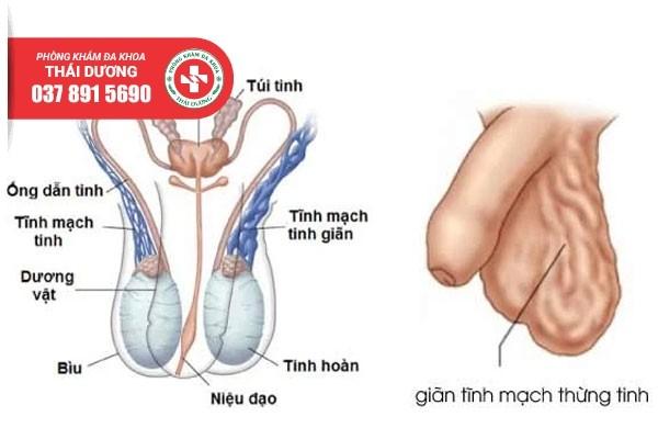 Giãn tĩnh mạch thừng tinh có thể gây vô sinh nếu không điều trị sớm