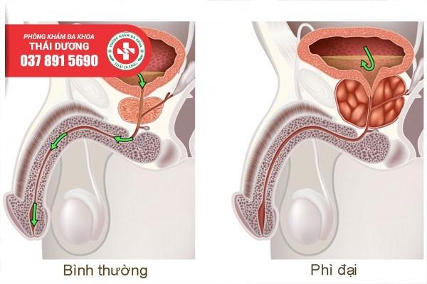 Phì đại tuyến tiền liệt là bệnh rất thường gặp ở nam giới tuổi trung niên