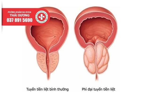 Phì đại tuyến tiền liệt gây ra nhiều ảnh hưởng cho nam giới