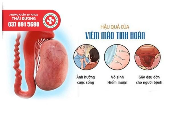 Viêm mào tinh hoàn gây ra nhiều tác hại nguy hiểm cho nam giới