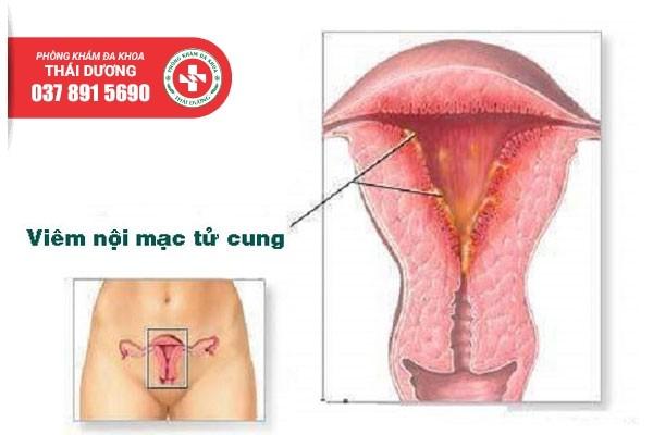 Hình ảnh viêm nội mạc tử cung