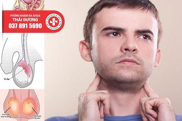 Viêm tinh hoàn có thể biến chứng gây vô sinh nếu không điều trị sớm