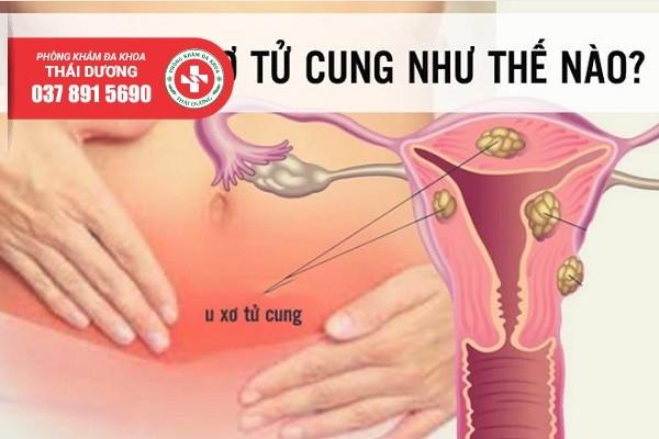 Biện pháp chữa trị u xơ tử cung